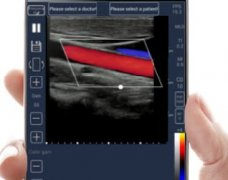 Meditech and Wireless Ultrasound Scanner Market Key Players